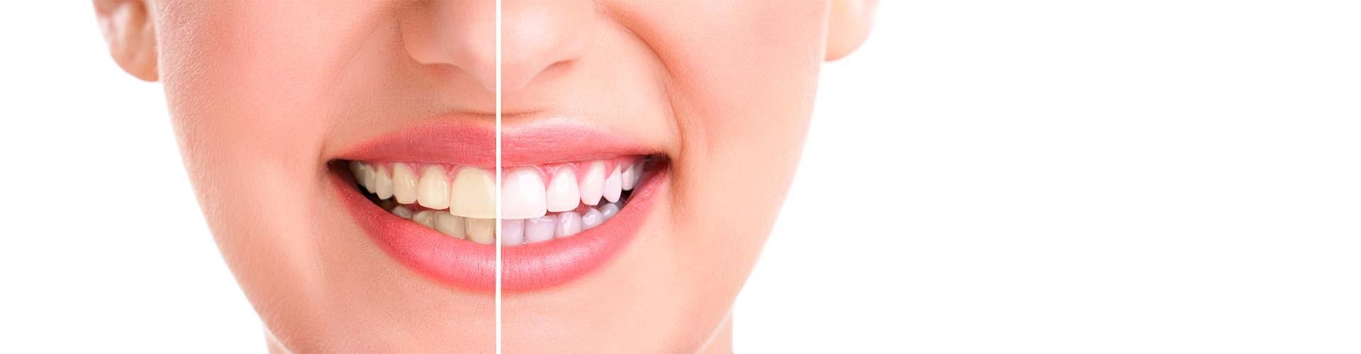 Λευκά Δόντια Πριν και Μετά